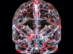 Ученые смогли при помощи МРТ прогнозировать возникновение депрессии