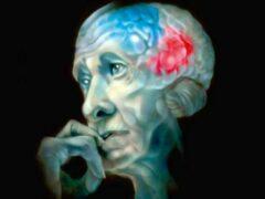 Болезнь Альцгеймера поможет предсказать виртуальная реальность