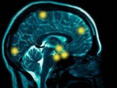 Загрязнённый воздух засоряет мозг человека магнитными частицами