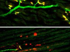 Крошечная молекула поможет бороться с нейродегенеративными заболеваниями