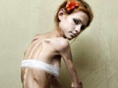 Анорексия возглавила рейтинг смертности среди психических расстройств