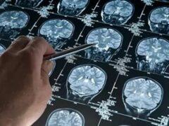 Ученые разработали способ делать снимки мозга при помощи хирургической иглы