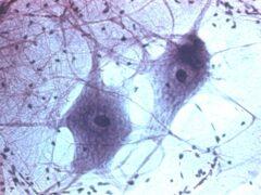 Ученые соединили поврежденные нейроны при помощи лазера