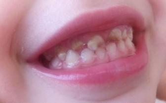 плохие зубы дети