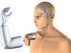 Российские ученые создадут протез, которым управляет сила мысли
