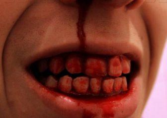 зубы кровь