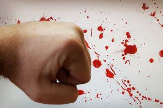 __ удар, кулак, кровь, драка